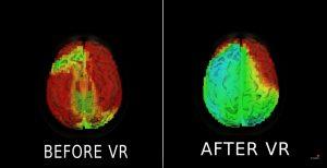 come ridurre lo stress attraverso la realtà virtuale e la realtà aumentata
